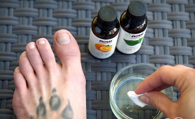 Tea Tree Oil for Toenail